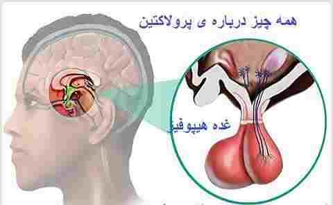 درمان پرولاکتین(Prolactin) بالا در زنان و مردان در طب اسلامی ایرانی