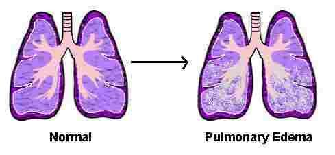 مشکلات تنفسی بعد از جراحی قلب