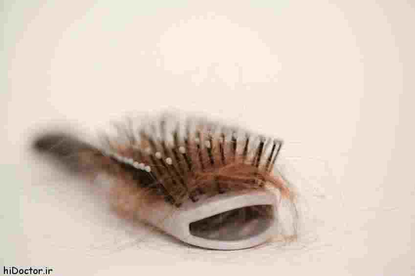درمان ریزش مو + ویدئو