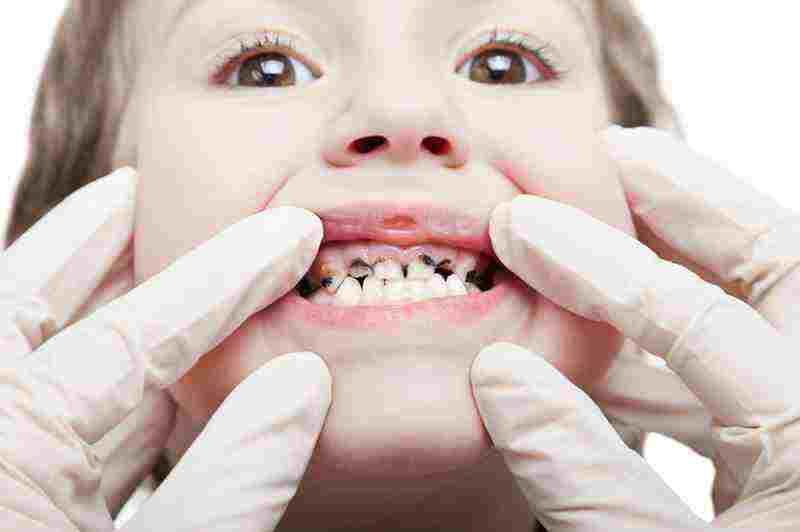 پوسیدگی دندان + اطلاعاتی درباره آن