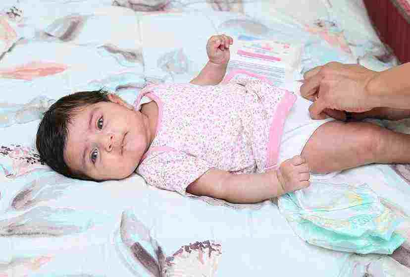 عفونت قارچی زیر پوشک نوزاد