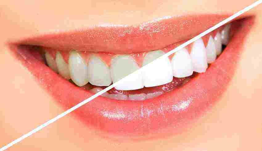 چگونگی سفید کردن دندان ها در خانه
