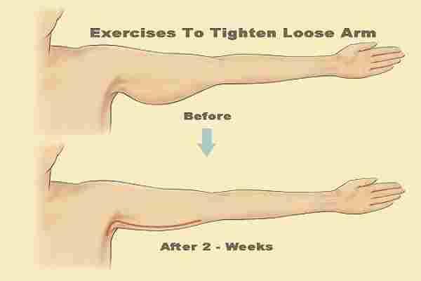 سفت کردن عضله